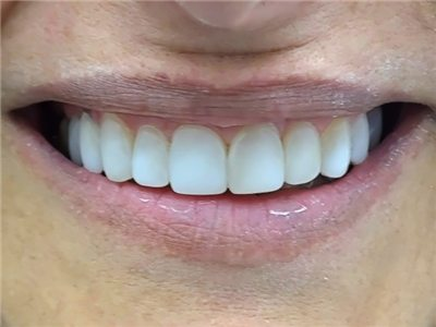 smile lift after